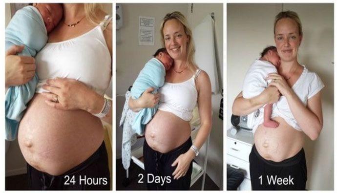 Jak zmienia się ciało po ciąży i porodzie?