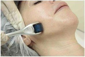 Mesoline – nowoczesna koncepcja zabiegów kosmetyczno-leczniczych