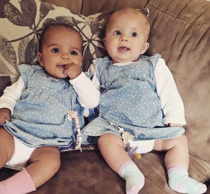 Poznaj bliźniaczki jedyne na milion