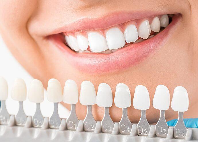 Jaką metodą wybielać zęby