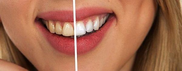 Pasta do zębów - co wiesz na jej temat?